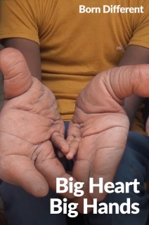 Born Different The Unforgettable Collection - S01:E11 - Big Heart Big Hands