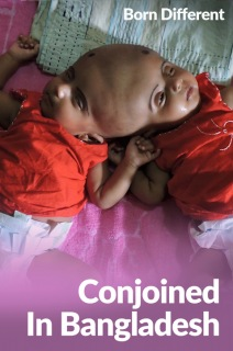 Born Different The Unforgettable Collection - S01:E05 - Conjoined In Bangladesh