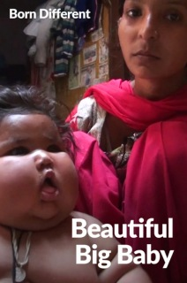 Born Different The Unusually Beautiful Collection - S01:E04 - Beautiful Big Baby