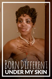 Born Different The Under My Skin Collection - S01:E01 - My Beautiful Skin